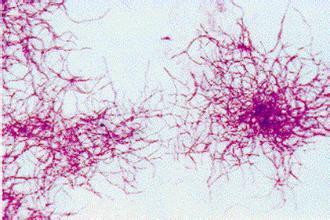 環保水處理經驗總結—有關細菌的那些事兒